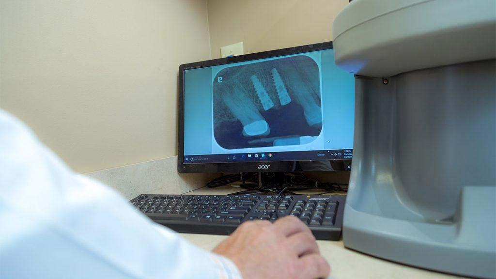 Dr. Elam examining Digital radiograph